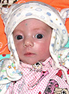 Сабина Латыпова, врожденная двусторонняя косолапость, требуется лечение по методу Понсети, 120150 руб.