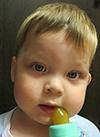 Никита Майоров, эпилепсия, синдром Веста, спасет установка стимулятора вагуса, 1200150 руб.