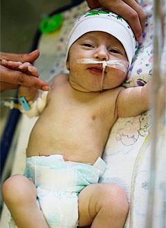 Егор Борондыкин, 1 месяц, атрезия (недоразвитие) тонкой кишки, спасет операция. 855330 руб.