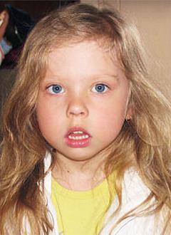 Ева Карвонен, 9 лет, деформации челюстей, поражение суставов, требуется ортодонтическое лечение. 320000 руб.