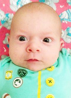 Саша Едренкин, 2 месяца, врожденная двусторонняя косолапость, требуется лечение по методу Понсети. 119350 руб.