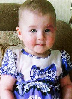 Есения Трач, 2 года, капиллярная мальформация (опухоль) сосудов лица, требуется лечение. 244000 руб.