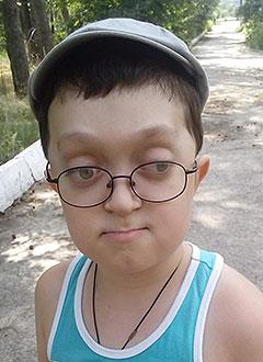 Ваня Чушкин, 8 лет, синдром Крузона (аномалия развития костей лица), требуется ортодонтическое лечение. 320000 руб.