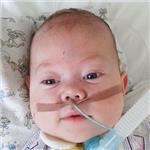 Дима Яндукин, врожденный порок развития гортани и бронхов, требуется лечение, 488250 руб.