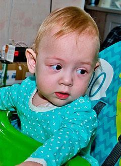 Мирослава Шилова, полтора года, синдром короткой кишки, спасет парентеральное (внутривенное) питание и лекарства. 1165548 руб.