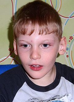 Артем Харин, 9 лет, детский церебральный паралич, эпилепсия, задержка психомоторного развития, требуется ортопедическое кресло. 333746 руб.