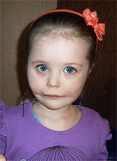 Аня Фоменко, 7 лет, послеоперационная рубцовая деформация щек, недоразвитие челюсти, микроглоссия (недоразвитие языка), требуется ортодонтическое лечение. 150000 руб.