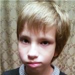 Антон Иванов, синдром Гольденхара (множественные врожденные пороки развития, включая недоразвитие челюстей, ушной раковины), требуется ортодонтическое лечение, 240000 руб.