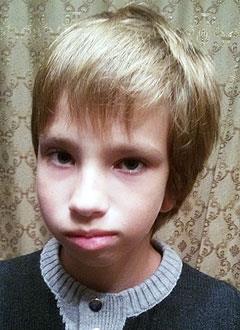 Антон Иванов, 11 лет, синдром Гольденхара (множественные врожденные пороки развития, включая недоразвитие челюстей, ушной раковины), требуется ортодонтическое лечение. 240000 руб.