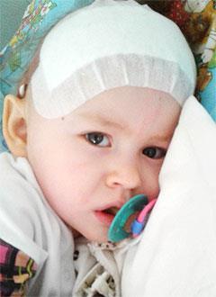 Соня Шаповалова, 3 года, эпилептическая энцефалопатия, задержка развития, требуется лечение. 199430 руб.