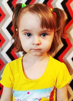 Диана Царева, 2 года, врожденная двусторонняя косолапость, рецидив, требуется лечение по методу Понсети. 206150 руб.