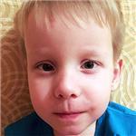 Даня Миронов, врожденная двусторонняя косолапость, рецидив, требуется лечение, 151900 руб.