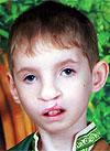 Вова Петренко, 7 лет, рубцовая деформация губы и носа, сужение челюсти, требуется лечение. 138200 руб.