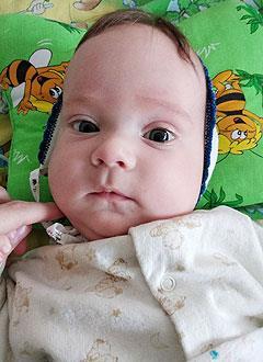 Матвей Бажулин, 4 месяца, деформация черепа, требуется послеоперационное лечение шлемами. 180000 руб.