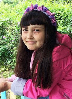 Мира Окай, 9 лет, сахарный диабет 1-го типа, требуются расходные материалы к инсулиновой помпе. 209182 руб.