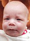 Алмаз Гилемханов, 4 месяца, врожденная двусторонняя косолапость, требуется лечение по методу Понсети. 151900 руб.