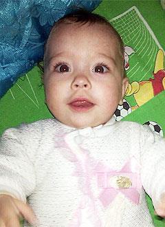Маша Коротич, 1 год, врожденный порок сердца, спасет операция. 527419 руб.