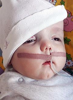 Лева Швец, 6 месяцев, артериовенозный порок развития церебральных сосудов, требуются средства по уходу. 402865 руб.