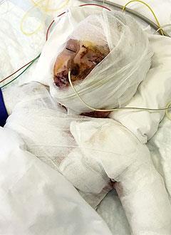 Ева Головина, 9 лет, ожог пламенем 2–3-й степени, кровоизлияние головного мозга, требуется специальное оборудование для удаления эндотоксина из организма. 974764 руб.