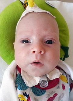 Настя Синюк, 2 месяца, стеноз трахеи, требуется комплект расходных материалов для трахеостомы. 145824 руб.