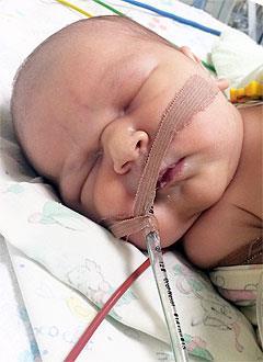 Томасс Уртанс, 6 дней, сложный врожденный порок сердца, спасет операция. 499100 руб.