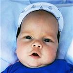 Костя Столяров, деформация черепа, требуется лечение специальными шлемами, 180000 руб.