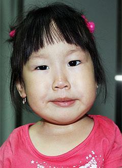 Эльзята Марылова, 3 года, артрогрипоз, врожденная деформация стоп, требуется лечение. 275590 руб.