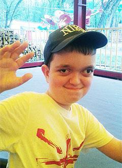 Муслим Бабаев, 9 лет, деформация черепа на фоне синдрома Пфайффера, требуется подготовка к операции и дистракционные аппараты. 790000 руб.