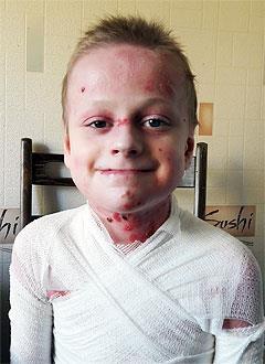 Рома Кушманов, 11 лет, врожденный буллезный эпидермолиз, дистрофическая тяжелая форма, требуются перевязочные материалы и средства для ухода за кожей. 780505 руб.