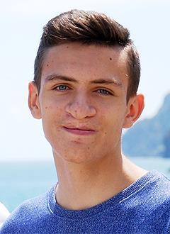Дима Артеменко, 17 лет, послеоперационная рубцовая деформация верхней губы и носа, деформация верхней челюсти, нарушение прикуса, требуется операция и ортодонтическое лечение. 420600 руб.
